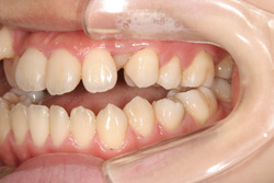 20歳女性「外科手術併用と思われる開咬」を抜歯して矯正だけで治療した症例
