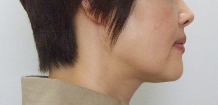 41歳女性 受け口の症例(外科矯正)