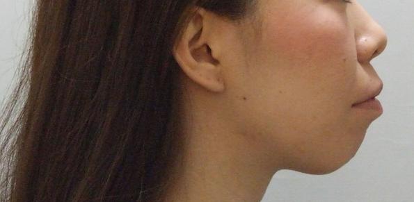 20代女性「口元が出ていて気になる」抜歯と矯正で治療した症例