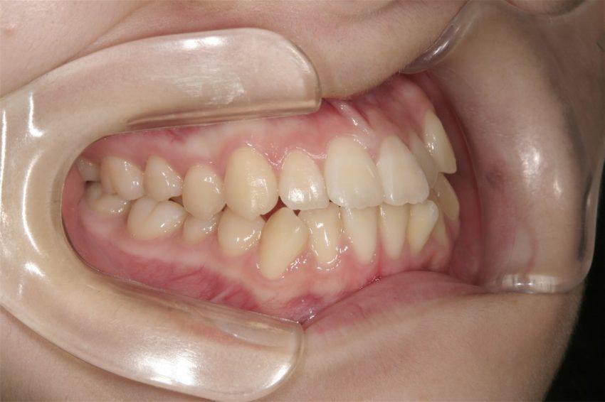 6歳女児 口元が突出し、乱杭歯の症例