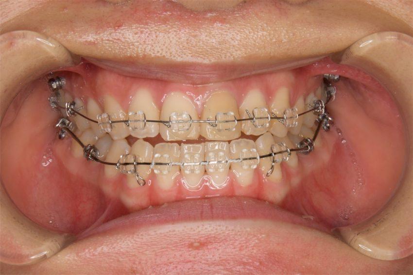 20代女性「受け口を治したい」歯科矯正用アンカースクリューを使って非抜歯で治した症例