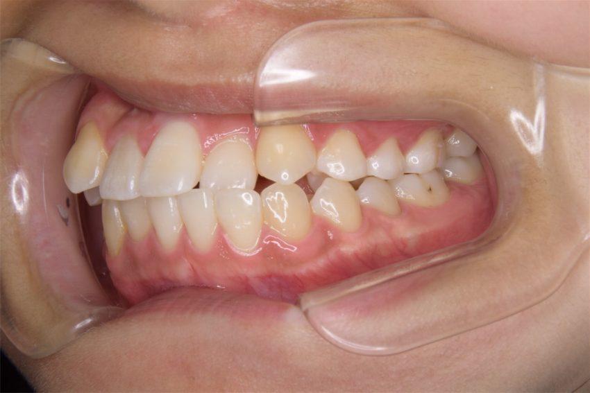 14歳女性 乱杭歯の症例
