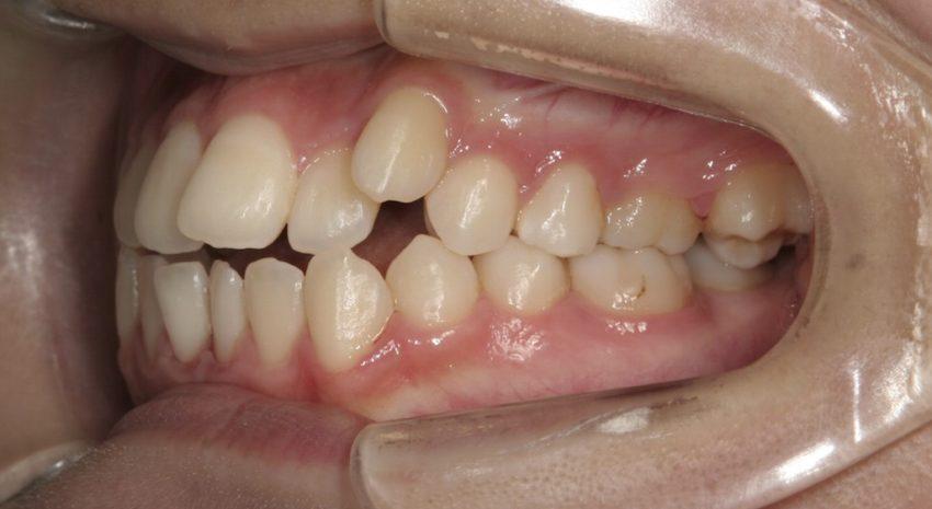 20代女性「犬歯が前に出ている、奥歯が噛み合わない」小臼歯を抜歯せずに矯正した症例