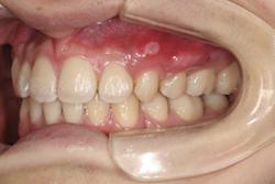 20歳男性「出っ歯とガタガタの歯並びが気になる」抜歯して矯正した症例