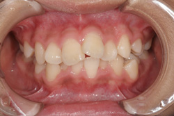 小学6年生女の子「前歯がでこぼこしている」抜歯をして矯正した症例