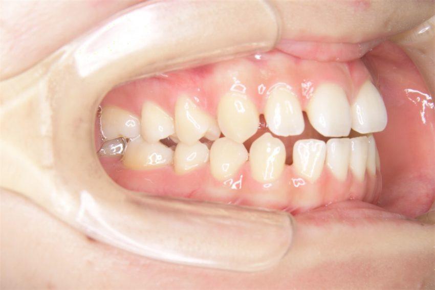 21歳女性 開咬の症例
