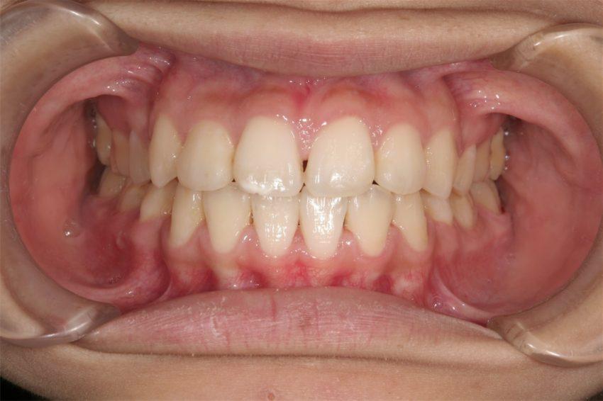 16歳女性 口元が突出し、乱杭歯の症例