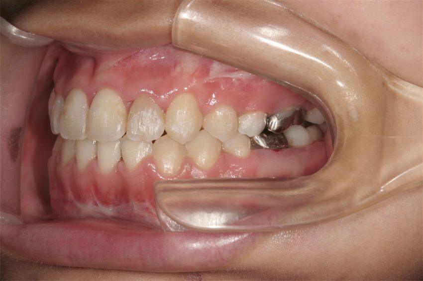 18歳女性 受け口、開咬の症例(外科矯正)