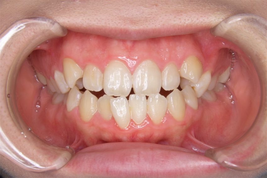 19歳女性 開咬、乱杭歯の症例