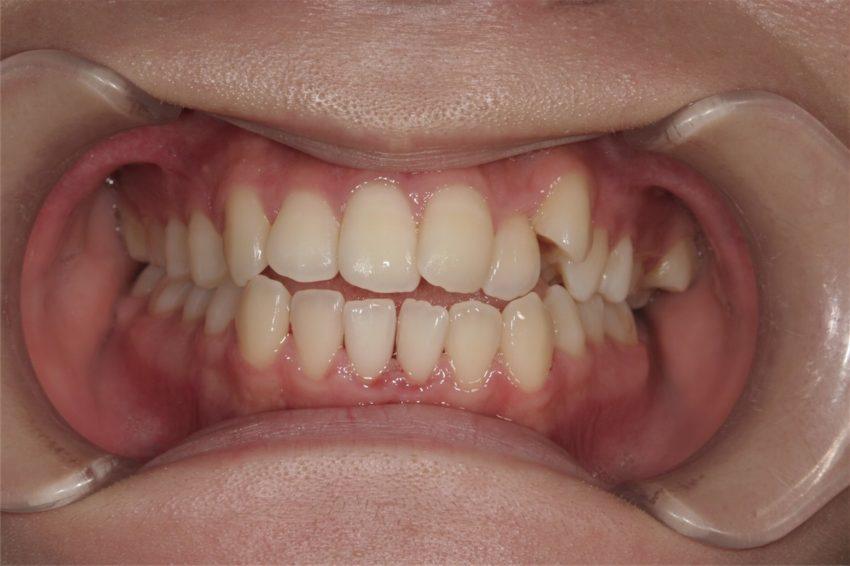 20歳女性 乱杭歯の症例