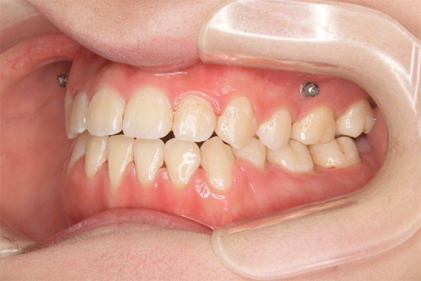 20歳女性 受け口、開咬の症例