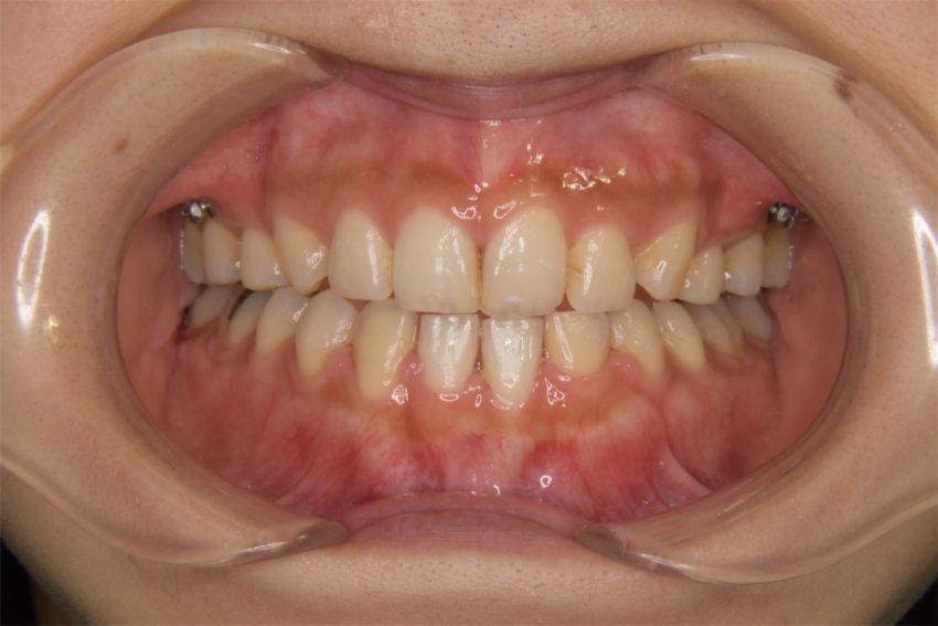 20代女性「前歯のデコボコが気になる」ハーフリンガルで矯正した症例